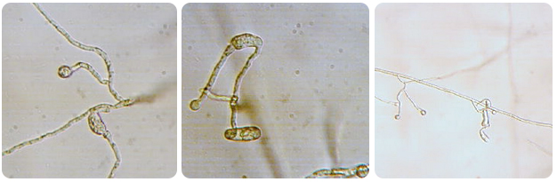 Ends of hyphae