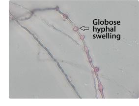globose hyphal swelling