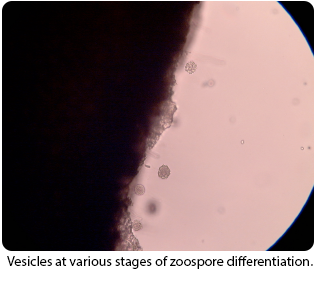 Vesicles at various stages of zoospore differentiation.